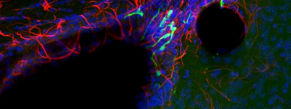 Recently born progenitor cells and neuroblasts (green) in the dorsal neural stem cell niche. Blue = DAPI, red = GFAP. Caroline Maier, Ihrie lab.