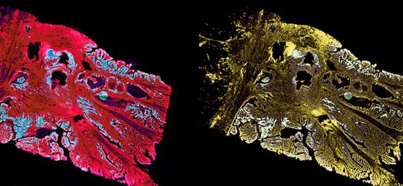 carcinoma cells, image courtesy Lau Lab